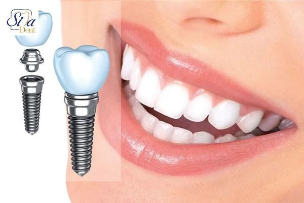 افزایش-طول-عمر-ایمپلنت-دندان