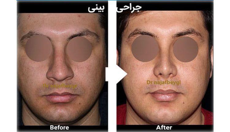 نمونه قبل و بعد از عمل بینی گوشتی دکتر نجف بیگی
