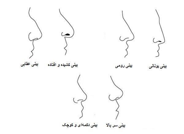 انواع فرم بینی